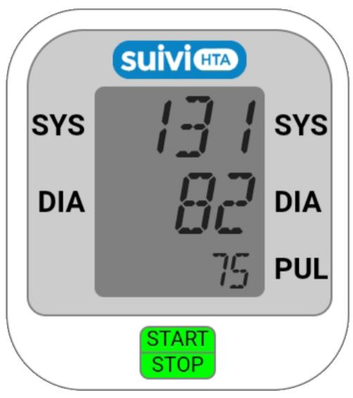 SuiviHTA - suivi de l'HTA (HyperTension artérielle) par..